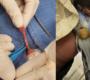 Američtí veterináři provedli první úspěšnou operaci kýly u andulky